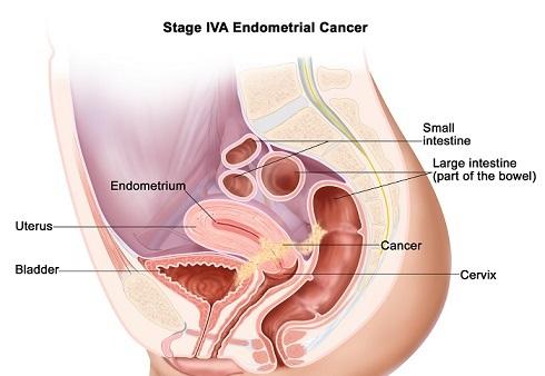 stage4a-ebdometrial-cancer.jpg