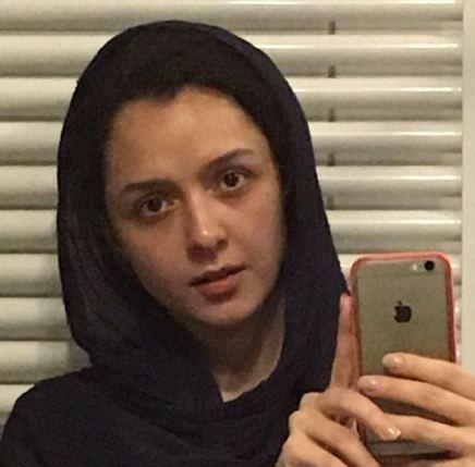 چهره واقعی ترانه علیدوستی بدون آرایش