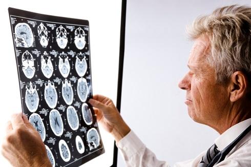 8. یک رویکرد شخصی به درمان آلزایمر