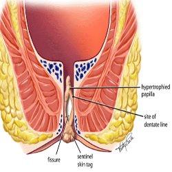 Anal-Fissure1.jpg