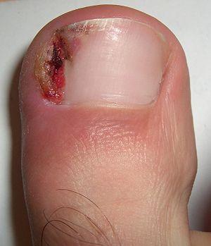 ناخن فرورفته پا ingrown toenail