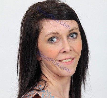 چهره زارا پس از جراحی کشیدن پوست