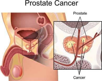 prostate-cancer_2.jpg