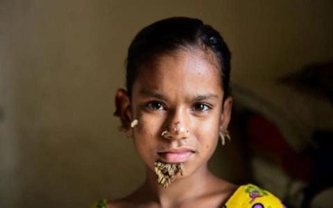 دختری که به سندروم انسان درختی مبتلاست