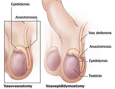 vasectomy-reversal-surgery.jpg