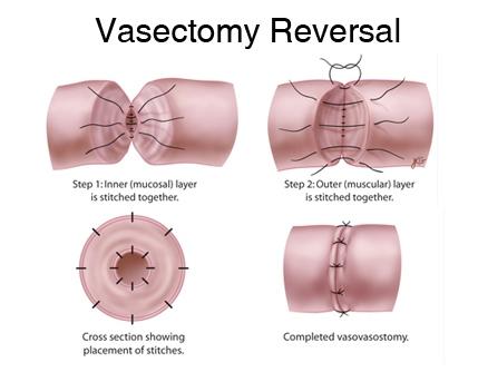 vasectomy-reversal.jpg