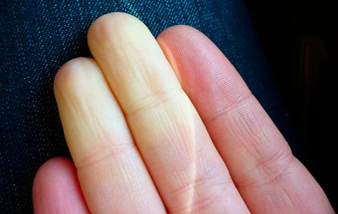 انگشتان آبی