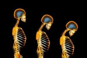 پوکی استخوان روند کوتاهی قد را تسریع می کند؟