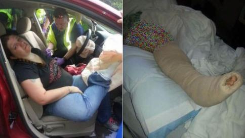 شکستن پای زن که برروی داشبورد قرار داشت