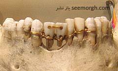 پلهای دندان